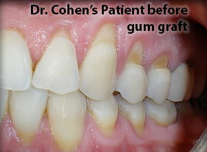 before gum graft 2