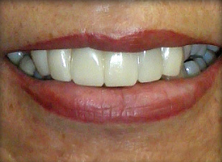 dental implant 1 after