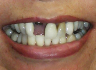 dental implant 1 before