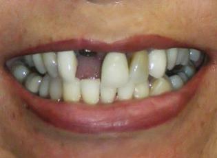 dental implant 1 before