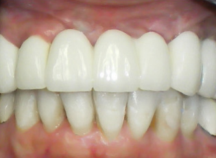 dental implant 2 after