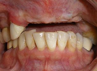 dental implant 2 before