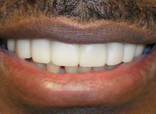 dental implant 3 after