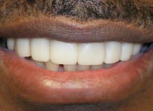 dental implant 3 after