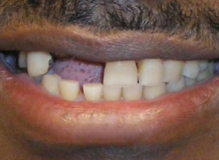 dental implant 3 before
