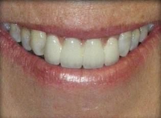 dental implant 4 after