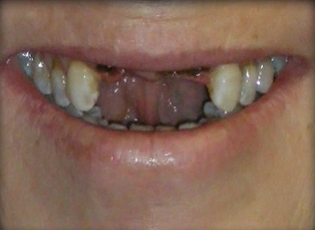 dental implant 4 before
