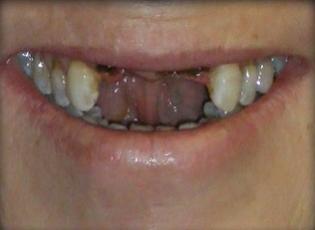 dental implant 4 before