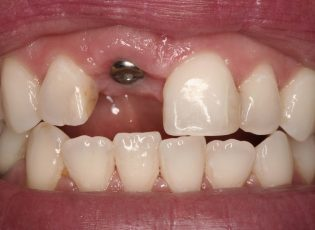 guided dental implants before-1