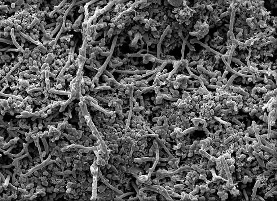 gum disease bacteria