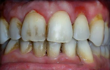 gum disease bigger