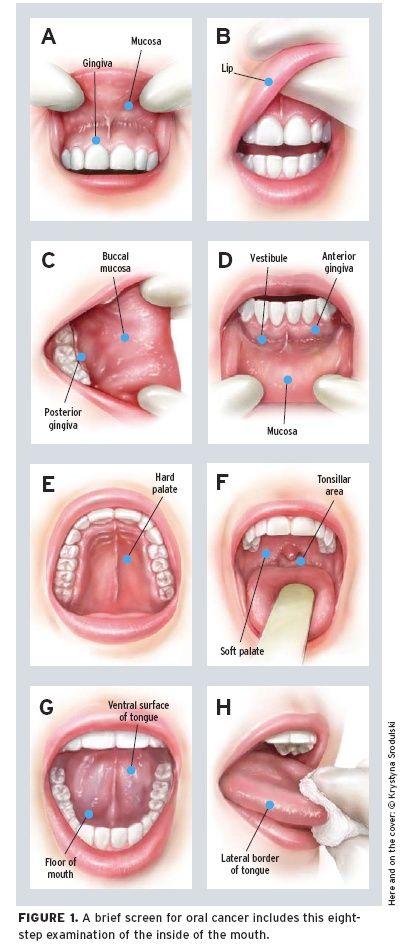 oral-cancer-detection-image